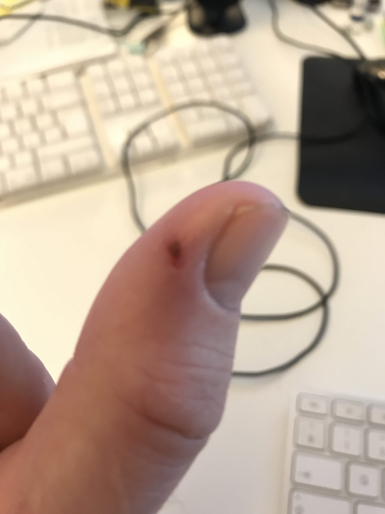 Injured Thumb With A Slight Cut